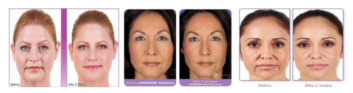 Juvederm results before and after