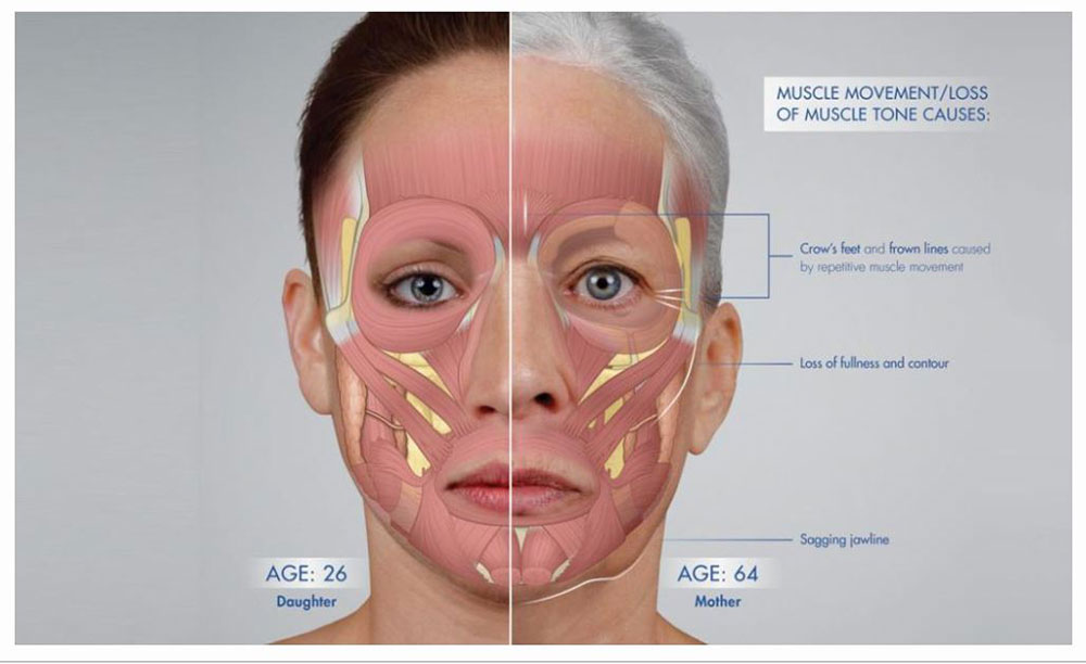 muscle structure facial