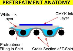 Pretreatment Anatomy Cross Section