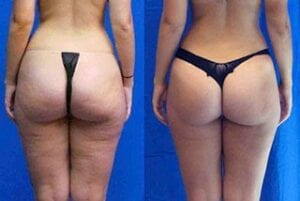 cellulite treatment arlington