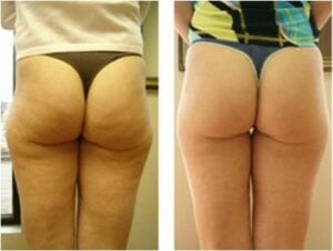 cellulite arlington virginia