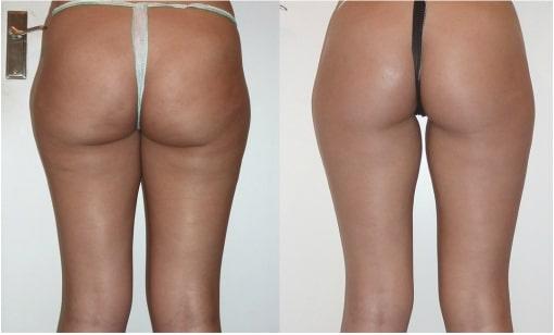 cellulite treatment arlington