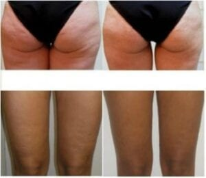 cellulite reduction northern virginia