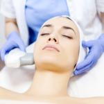 laser treatments arlington