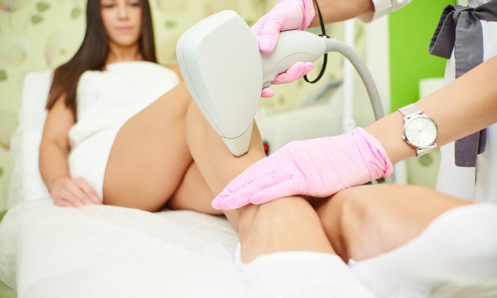 laser hair removal arlington