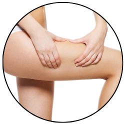 cellulite reduction arlington