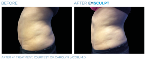 body contouring northern virginia
