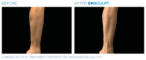 emsculpt legs northern virginia
