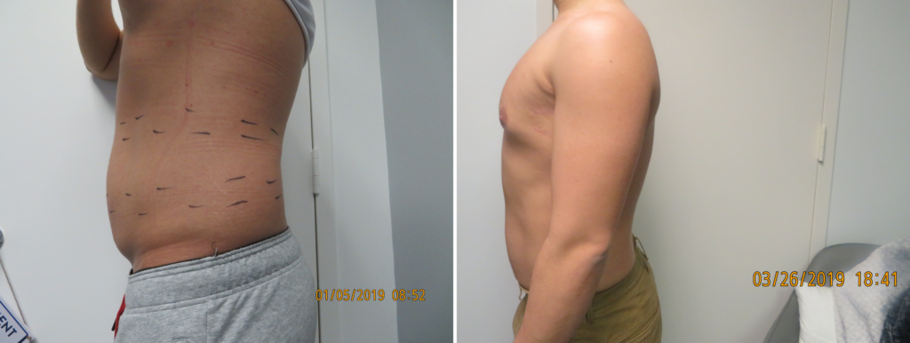 male fat reduction northern virginia
