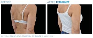 emsculpt for biceps