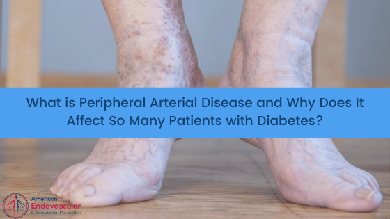 What is Peripheral Arterial Disease and Why Does It Affect So Many Patients with Diabetes