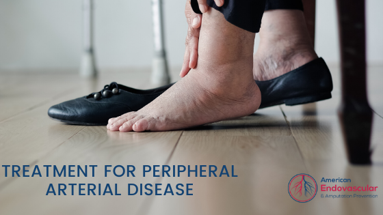 Treatment for Peripheral Arterial Disease