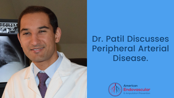 Dr. Patil Discusses Peripheral Arterial Disease