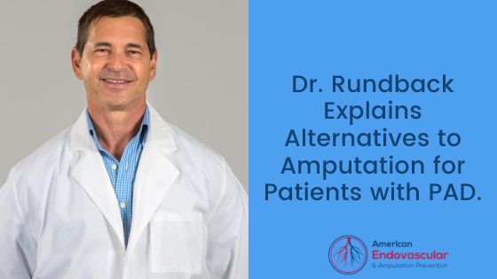 Dr. Rundback Explains Alternatives to Amputation for Patients with PAD