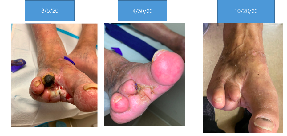 Before and After Limb Loss Prevention