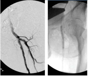 Proximal SFA stenosis treated with atherectomy and angioplasty