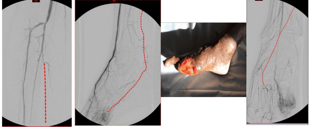 Initial angiogram: 12/1/20