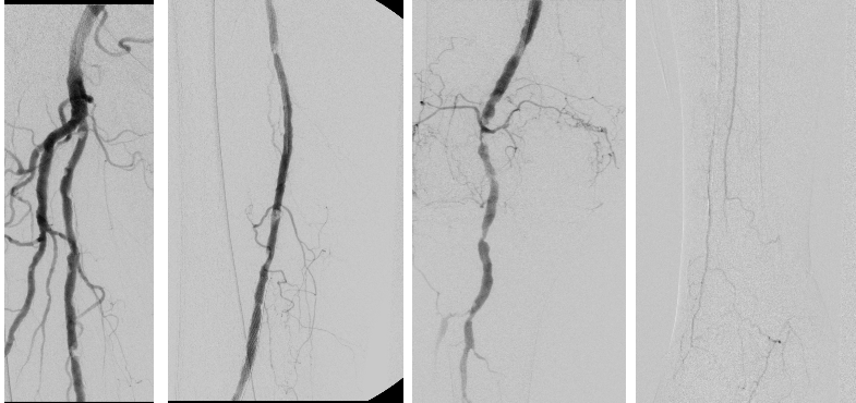 Right Lower Extremity Angiogram