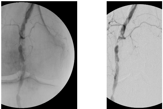 Heavily Calcified Pre-occlusive Mid Popliteal Artery Stenosis