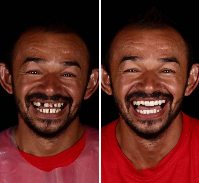 Brazilian-Dentist-Travel-Poor-People-Teeth-Fix-Felipe-Rossi
