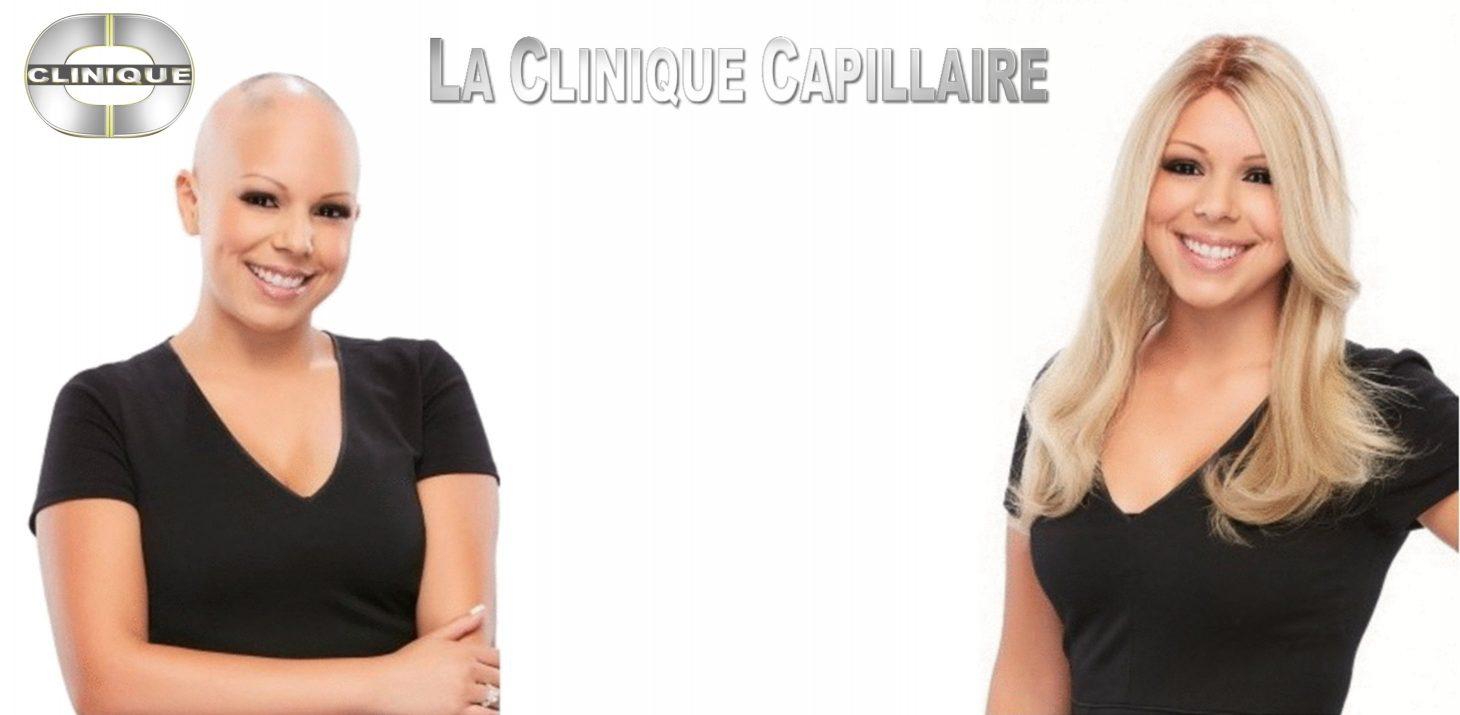Perruque Cancer Top Qualite Vaste Selection Plus De 1200 Perruques