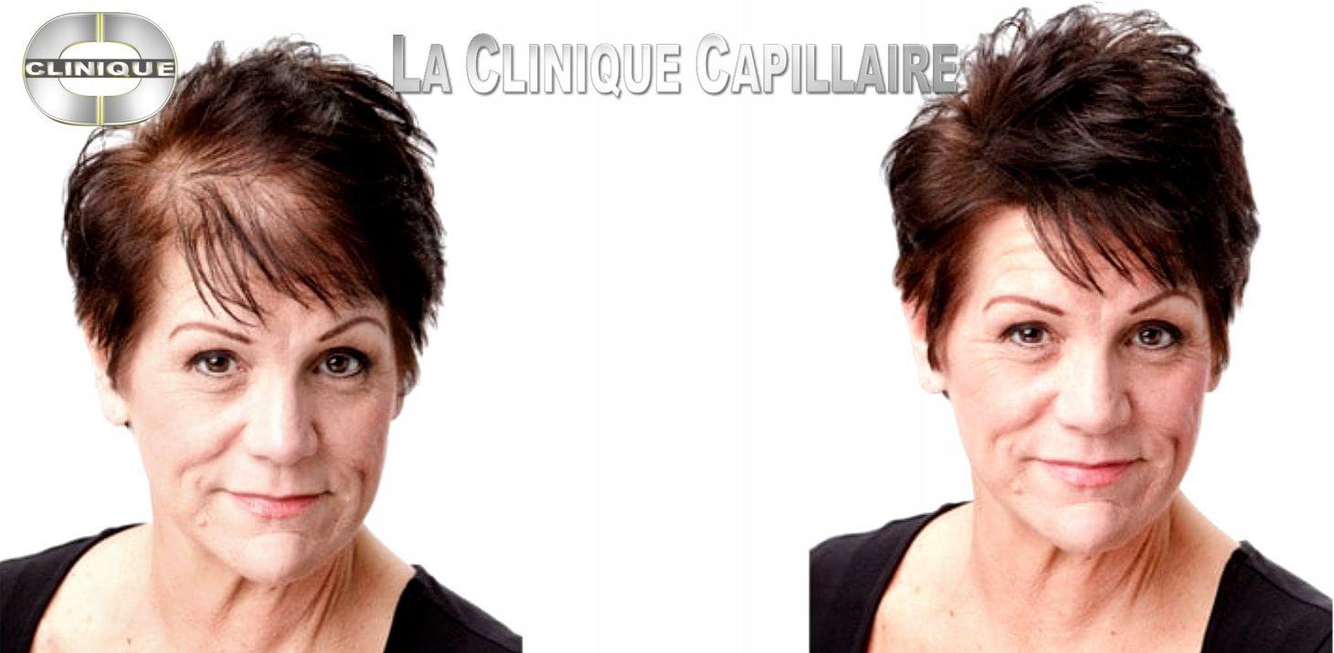 Prothèse Capillaire, Top Qualité, Vaste Sé