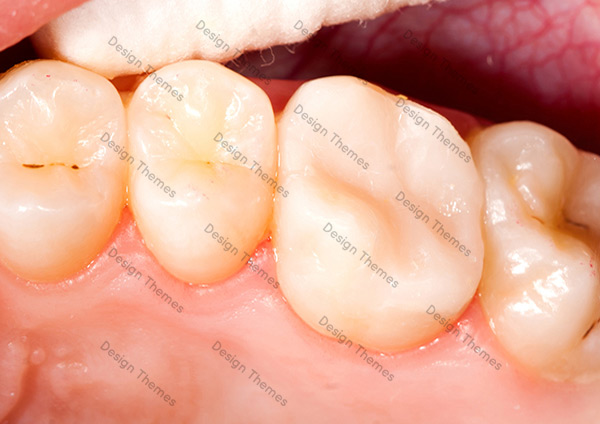After-Dental-2