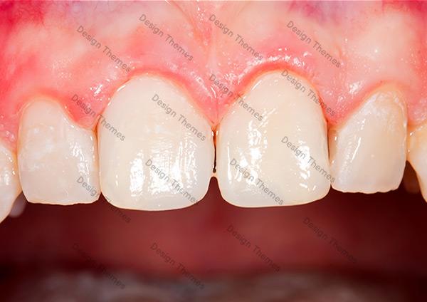 After-Dental-3