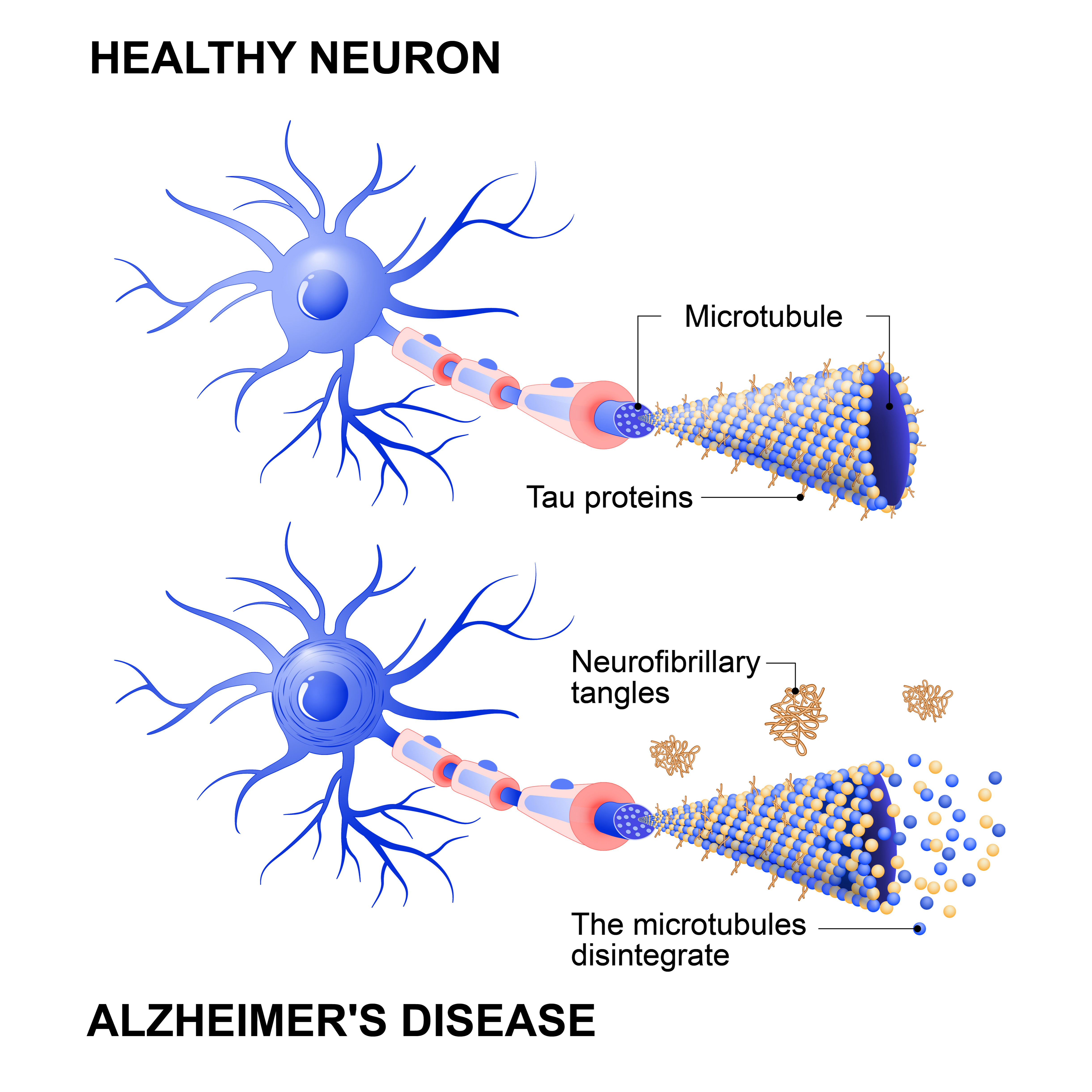 healthy neuron and