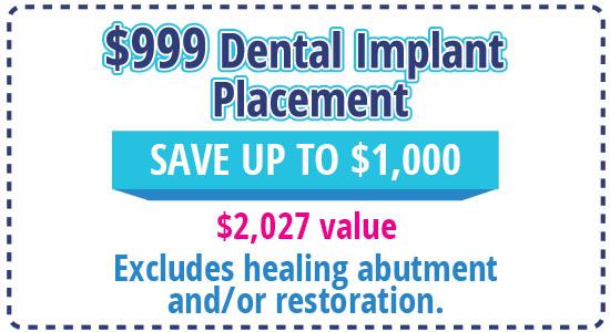 4 ImplantPlace