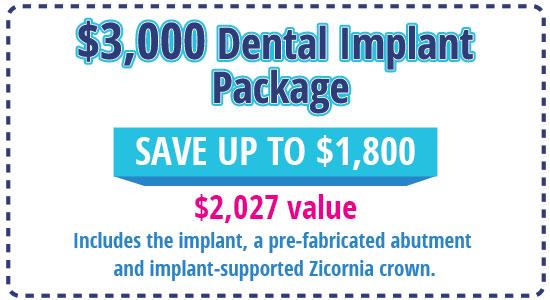 5 ImplantPackge