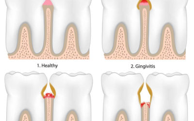Signs & Symptoms of Periodontal Disease