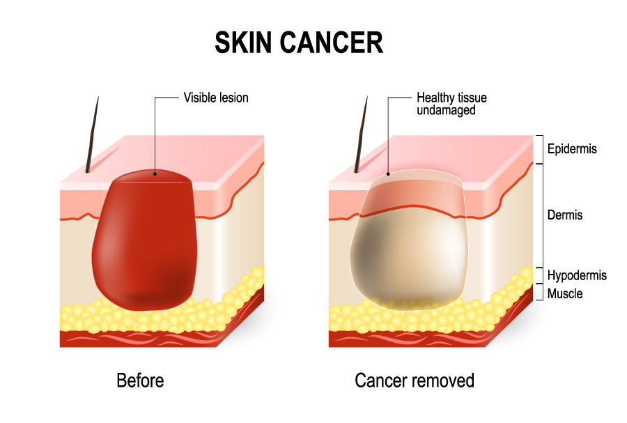 Mohs Skin Cancer Surgery