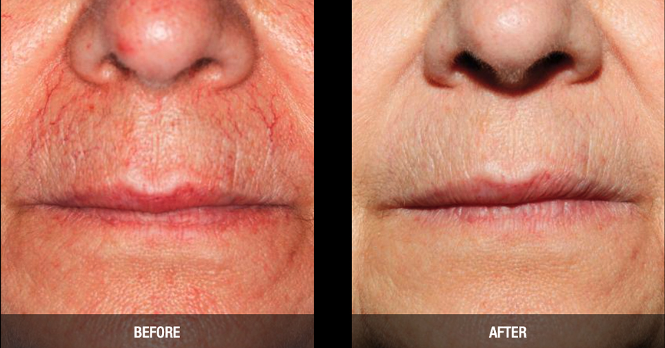 Nordlys Laser & Light Treatments before after