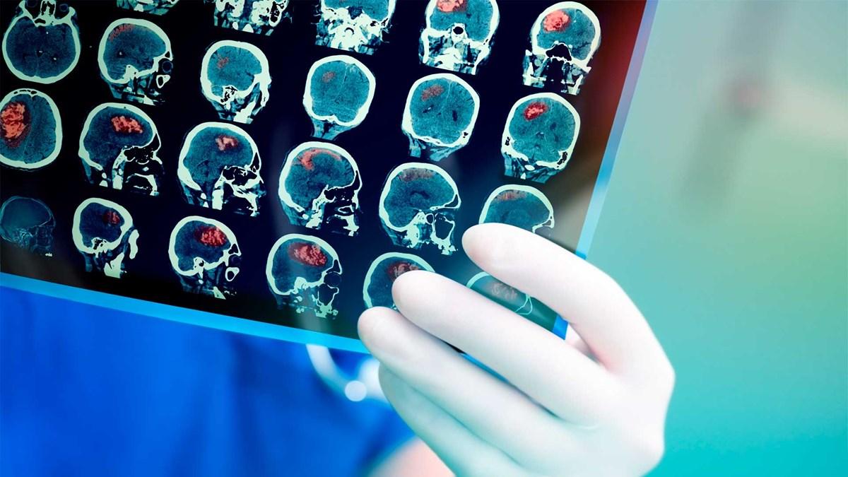 Strategic Partners. Grapheton – Brain Machine Technology (BMI)