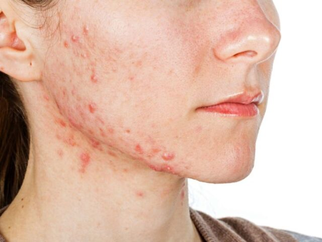 Acne scars: Diagnosis and treatment