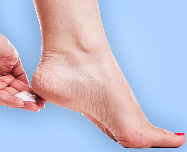 How to Repair Dry And Cracked Heels