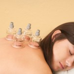 cupping acupuncture fertility san diego