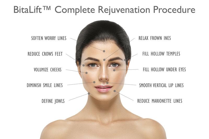 BitaLift™ Complete Rejuvenation Procedure