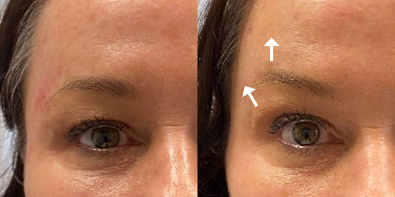 Get A Brow Lift Too!