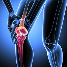 tampa pain doctor, tampa best chiropractor, chiropractor in tampa, chiropractor for arthritis, chiropractic treatments arthritis, chiropractor wesley chapel