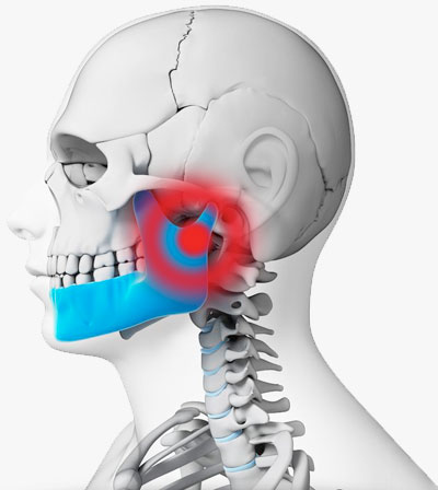 tampa tmj chiropractor, chiropractic for tmj pain, chiropractor tampa, best tmj doctor tampa, tmj treatments in tampa, noninvasive tmj treatments, chiropractic tmj new tampa, tampa palms chiropractor