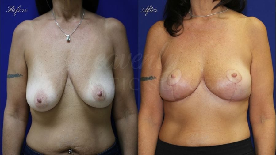 Plastic surgery, plastic surgeon, before and after breast lift, breast lift, mastopexy