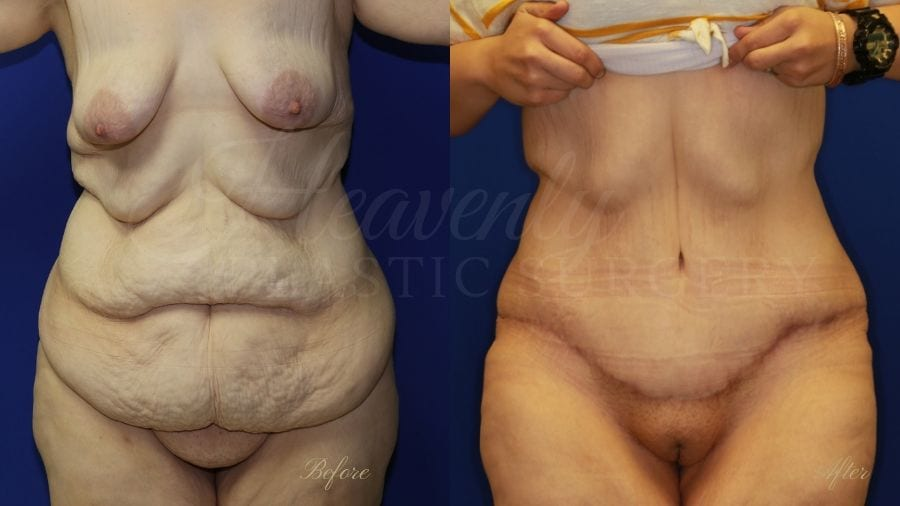 tummy tuck, abdominoplasty, panniculectomy, plastic surgery, plastic surgeon