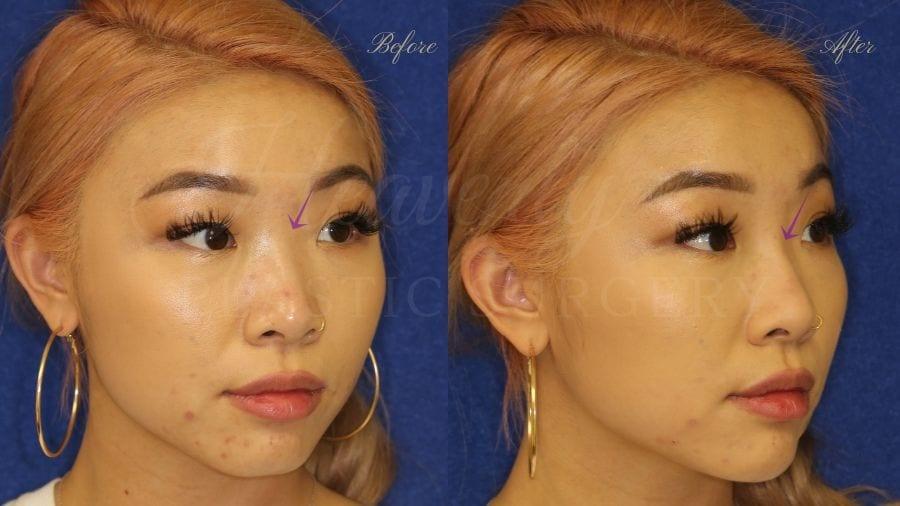 Nonsurgical rhinoplasty, nonsurgical nose job, filler nose, juvederm, vollure, volbella