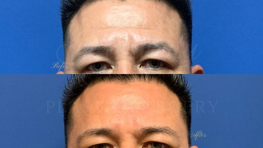 forehead wrinkles, botox, filler, juvederm, volbella, vollure