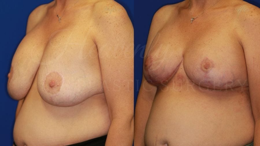 Breast Implant Exchange and Lift - 255cc SRM Silicone under the muscle with Wise-pattern Mastopexy (Anchor Scar)