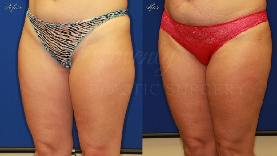 Plastic surgery, plastic surgeon, liposuction thighs