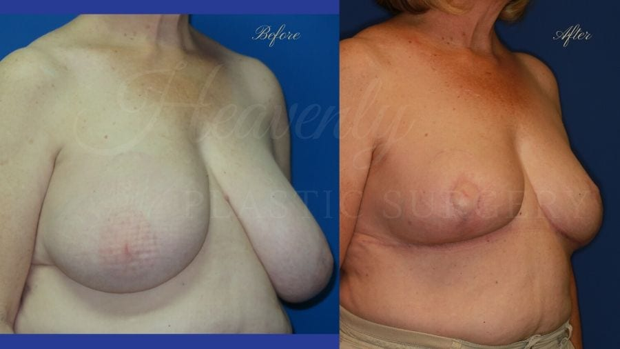 Plastic surgery, plastic surgeon, breast reduction, breast lift, reduction mammaplasty, mastopexy, before and after