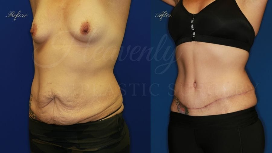 Plastic Surgery, plastic surgeon, tummy tuck, abdominoplasty, weight loss